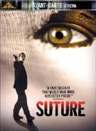 Suture cover